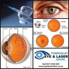 What is Avastin? Avastin is a drug used to treat wet age-related macular degeneration (AMD). It is also used to treat diabetic eye disease and other problems of the retina. It is injected into the eye to help slow vision loss from these diseases. Diabetic Eye Disease, Optic Nerve, Laser Clinics, The Retina, Diabetes, Drugs, Lens, Age, Treats