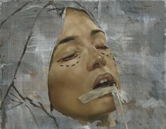 Lower Lid Blepharoplasty II from Jonathan Yeo's Haunting Plastic Surgery Portraits
