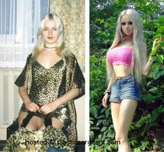 Plastic surgery actually turned her into looking like a Barbie doll..... she got surgery to meet the expectations of the world she lives in.