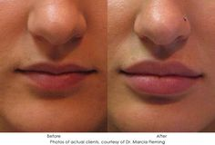 Restylane Lips, Botox Lips, Lip Injections Juvederm, Dermal Fillers, Lip Fillers, Juviderm Lips, Lip Augmentation, Facial, Beauty