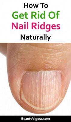 Pin on Zdrowie kobiet Pin on Zdrowie kobiet Nail Problems, Health Problems, Healthy Nails, Healthy Skin, Healthy Treats, Nail Health Signs, Nail Growth Tips, Nail Ridges, Pin On