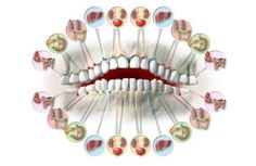 Each Tooth Is Associated With An Organ In The Body – Pain In Each Tooth Can Predict Problems In Certain Organs Meridians acupuncture Dental Health, Oral Health, Dental Care, Gum Health, Tooth Chart, Tooth Pain, Tooth Ache, Natural Teeth Whitening, Wisdom Teeth