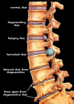Sciatica causes and symptoms. click the pic to read more.