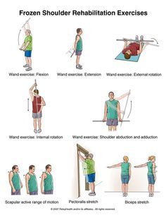 Frozen shoulder or stiff shoulder exercises - Shoulder exercises physical therapy - Shoulder Rehab Exercises, Frozen Shoulder Exercises, Frozen Shoulder Pain, Stiff Shoulder, Shoulder Workout, Shoulder Stretches, Cardio Yoga, Pilates, Hand Therapy