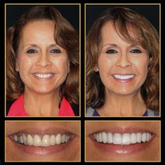 Our Smile Gallery says it all... the results speak for themselves. Call 512.333.7777 for a free consult and get the results you deserve!  #veneers #veneerscost #cosmeticdentistry #Smile #austincosmeticdentistry #Cosmeticdentist #cosmeticdentistaustin #reconstructivedentist #dentalimplants #smilemakeover #ATX #Austin #cosmeticdentistsofaustin #VeneersAustin #VeneersPorcelainCosts #sedationdentistaustin #veneersbeforeandafter Express Smile, Tooth Crown, Sedation Dentistry, Dental Veneers, Porcelain Veneers, Smile Makeover, Dental Procedures