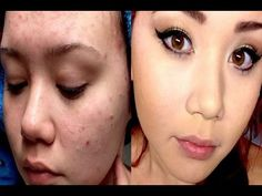 How to get rid of acne overnight with lifestyle changes- Get rid of acne...
