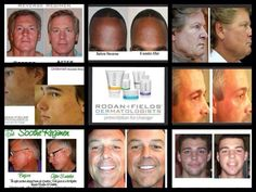MEN! Think this Rodan and Fields business is just for your wife or girlfriend? We ALL have skin and we ALL need to take care it. Age well with solutions created to stop the signs of aging and years of sun abuse. You've still got your charm, now let's hold on to those boyish good looks. http://www.jillmccord.myrandf.com