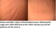 My results after using the It Works Stretch Mark cream for 3 days.   www.oregonwraplady.com www.kaileeadams.com Stretch Mark Cream, Stretch Marks
