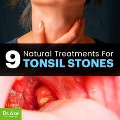 9 Natural Treatments for Tonsil Stones. Natural Add Remedies, Natural Treatments, Natural Healing, Herbal Remedies, Natural Oil, Cold Remedies, Holistic Remedies, Holistic Healing, Natural Beauty