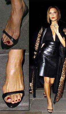#bunions are looking better here, #VictoriaBeckham
