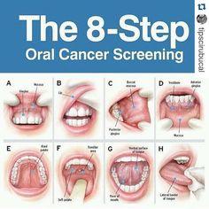 Consulta a los especialistas  #Repost @tipscirubucal with @repostapp. Recuerda estos 8 pasos para el examen de descarte del Cancer Bucal! #dentista #odontologia #odontogram #sonrisa #sonrie #tgif #felizviernes #findesemana #buenosdias #bomdia #felizsexta #felizdia #dentistry #dentist #oralcancer #cancer #viernes #saude #salud #dental #saludbucal by naguasonrisa Our General Dentistry Page: http://www.lagunavistadental.com/services/general-dentistry/ Google My Business…