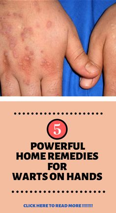 home remedies for warts on hands natural| There's no need to go to the dermatologist to get warts removed from your skin.  home remedies For Warts on hands| home remedies For Warts on feet| home remedies For Warts on face| home remedies For Warts On Hands| home remedies For Warts On Feet| home remedies For Warts On Face| home remedies For Warts Cases| home remedies For Warts Removal| home remedies For Warts On Knees| home remedies For Warts On Toes| home remedies For Warts How To Get Rid|