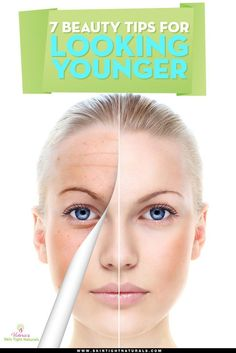 One problem that generally goes hand in hand with acne is oily skin. Skin that looks like it has been drizzled with oil. Younger Skin, Look Younger, Younger Looking Skin, Dark Lips, Dark Skin Tone, Diy Face Mask, Oily Skin, Skin Oil, Beauty Routines