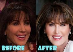 Robin McGraw Plastic Surgery Before and After Picture