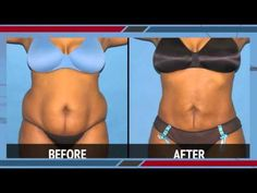 Smart Lipo Laser Liposuction Before & After Photos, Video 4. Advanced Cosmetic Surgery of NY has centers in Commack, Long Island and Manhattan, NYC. To see our full SmartLipo before and after photo gallery, please visit http://smartliposurgeonny.com/before-after-photos/.