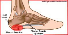 Natural Remedies for Plantar Fasciitis (Jogger's Heel)