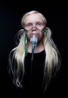 Photographer Kyle Monk took these beautiful images of real kids with Cystic Fibrosis. Delta Phi Epsilon, University of Maine Cystic Fibrosis Awareness Cystic Fibrosis Facts, Respiratory Therapy, Creative Photography, Photography Tutorials, Photography Ideas, Portrait Photography, Asthma, Genetics, The Cure