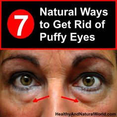 Here are 7 natural ways to get rid of puffy eyes. Use things you already have in your home, or at your local supermarket, for effective under-eye treatments. care dark circles care logo care skin care tips care vision Beauty Care, Beauty Hacks, Beauty Skin, Diy Beauty, Face Beauty, Beauty Secrets, Home Remedies For Hair, Tips And Tricks, Puffy Eyes