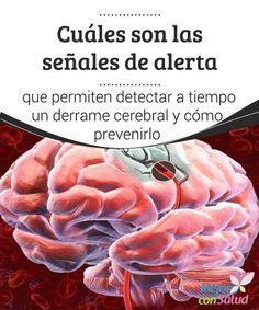 Cuáles son las señales de alerta que permiten detectar a tiempo un derrame cerebral y cómo prevenirlo El deporte es una de las mejores formas de prevenir el accidente cerebrovascular, ya que fortalecemos el corazón y, además, liberamos el estrés, que es un posible desencadenante