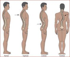 Types of Spine Curve Disorders: Kyphosis, Lordosis, Scoliosis