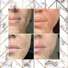 Acne Skin, Oily Skin, Plasma Facial, Thread Lift, Love Your Skin, Makeup Obsession, Skin Tightening, Permanent Makeup, Skin Treatments