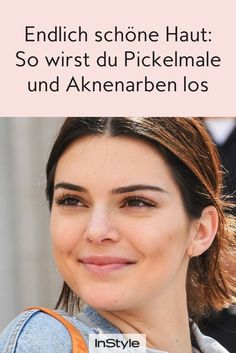 So you get rid of pimple marks and acne scars- So wirst du Pickelmale und Aknenarben los Frustrated with pimple paints and acne scars? We tell you what you can do to make your skin shine smoothly and evenly. Younique, Pimple Marks, Skin Shine, Long Hair Tips, How To Get Rid Of Pimples, Glossy Hair, Beauty Hacks, Beauty Tips, Diy Beauty