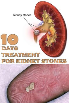 10 days treatment for kidney stones