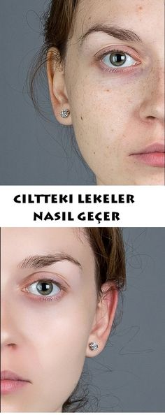 Natural treatment for skin blemishes. produkte Ciltteki lek… Natural treatment for skin blemishes. to produkte How skin spots pass - Beauty Care, Beauty Hacks, Hair Beauty, Anti Aging Skin Care, Natural Skin Care, Face Care, Body Care, Wie Macht Man, Skin Spots