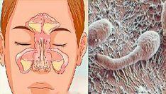 Проблема вашего заложенного носа находится в вашем кишечнике! С помощью этих методов ваши респираторные проблемы обязательно исчез...