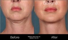 12 Best kybella images in 2016 | Double chin, Double chin
