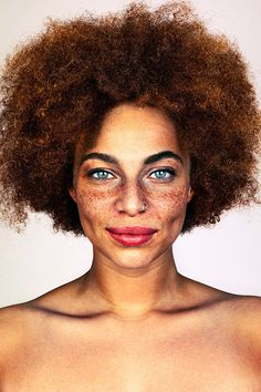 "Photographer Brock Elbank has sought out ""incredible-looking humans"" for his photo project #Freckles."