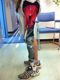This above the knee prosthetic sports a beautiful airbrushed paint job of muscle integrated with mechanical parts that comprise the leg toward the knee.
