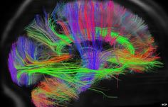 Scientists are set to release the first batch of data from a project designed to create the first map of the human brain.    The project could help shed light on why some people are naturally scientific, musical or artistic.    Some of the first images were shown at the American Association for the Advancement of Science meeting in Boston.