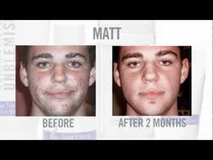 Awesome new video featuring many of Rodan+Fields before and after pictures and the regimens they used.  Contact me to get started.