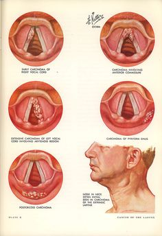 Vocal cord illustrations by Frank Netter,  Clinical Symposia, 1964