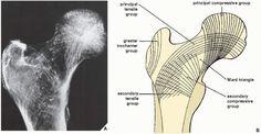 Osteoporosis, Rickets, and Osteomalacia | Radiology Key