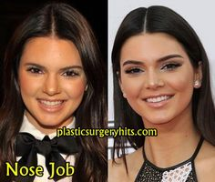 Another fantastic example of a pretty girl having her beauty refined Kendall Jenner Nose Job