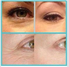 More untouched photos from using our Multi-Function Eye Cream which contain collagen stimulating peptides.