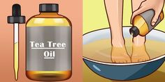 Tea tree oil or melaleuca is famous for its antiseptic properties. It can also treat wounds and minor injuries. It is derived from Melaleuca alternifolia, an Australian native plant which has been wid
