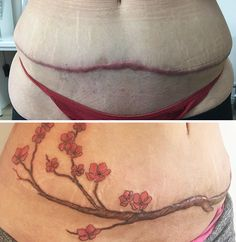 Tattoo Cover Up Amazing Tattoos That Turn Scars Into Works Of Amazing Tattoos That Turn Scars Into Works Of Art Tummy Tuck Scar Tattoo, Tattoo Over Scar, Tummy Tuck Scars, Scars Tattoo Cover Up, Scar Cover Up, Stomach Tattoos, Tatouage Abdomen, Abdomen Tattoo, Pretty Tattoos
