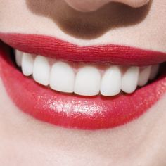 """Avoid a """"dental disaster"""" and keep your smile healthy and bright this Christmas!"""