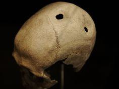 Άλυτα μυστήρια: Γιατί οι προγόνοι μας τρυπούσαν τα κρανία τους