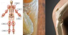 Increíble: Los huesos y las articulaciones curadas con un solo ingrediente que todo tenemos en casa. - Salud y Más.