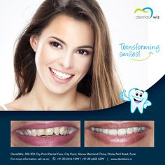 transforming smile with dentalwiz clinic Visit our website www.dentalwiz.in