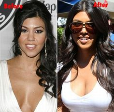 7 photos of Kourtney Kardashian before and after plastic surgery. The 2 types of cosmetic surgery she's had include: breast implants and nose job. Kourtney Kardashian is a 41 year. Khloe Kardashian, Kardashian Kollection, Kourtney Kardashian Plastic Surgery, Robert Kardashian Jr, Kris Jenner, Kendall Jenner, The Simple Life, Plastic Surgery Photos, Celebrity Plastic Surgery
