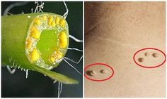Do you Have Warts Here Is How To Remove Them Forever