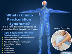 What is Cramp Fasciculation Syndrome?