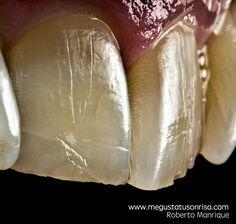 Fotografía dental macro