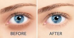 9 home remedies to get rid of circles under the eyes