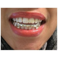 Tooth gem kits you can do at home do it yourself tooth gem kit custom made removable gold caps teeth including the mold kit and shipping 6 teeth grillzgrills solutioingenieria Choice Image